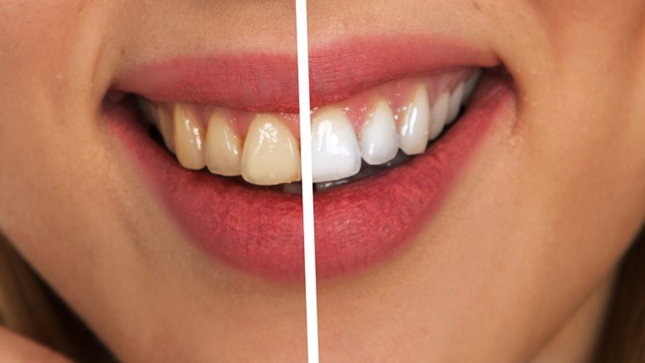 Teeth Whitening Home Remedies What You Should Know Utopia